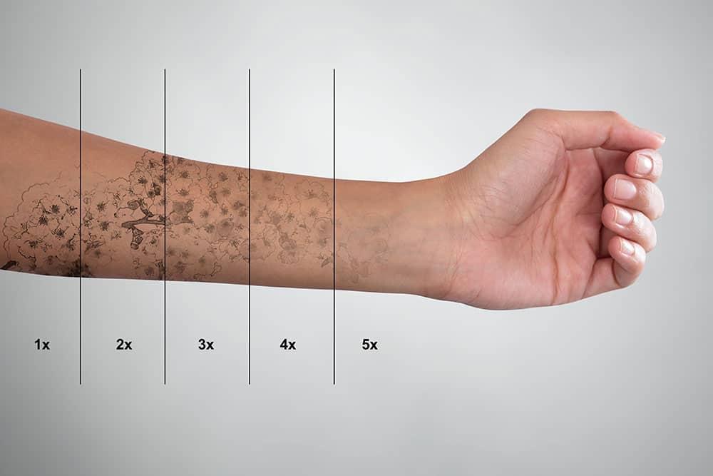 Pico Way Tattoo Removal