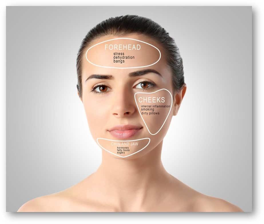 acne shared
