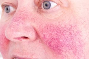 Rosy Complexion? Flushed Cheeks? You May Have Rosacea