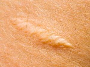 Scars on skin