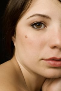 Girl With Moles