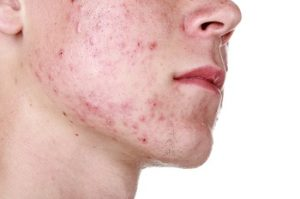 Are You Dealing With severe Acne