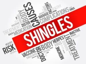 Treating Shingles