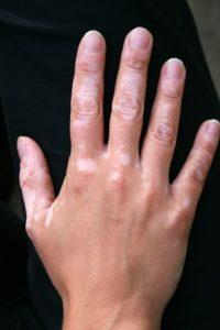 What is Vitiligo